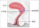 子宫内膜炎怎么治疗呢